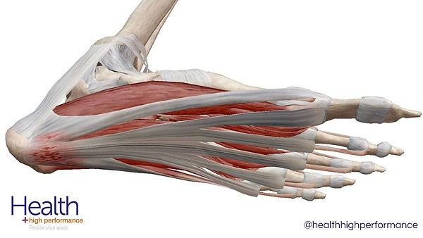 Plantar heel pain ARTICLE (1).jpg