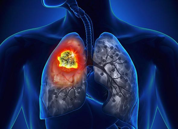 Cancer tumor (illustration). Photo: medscape
