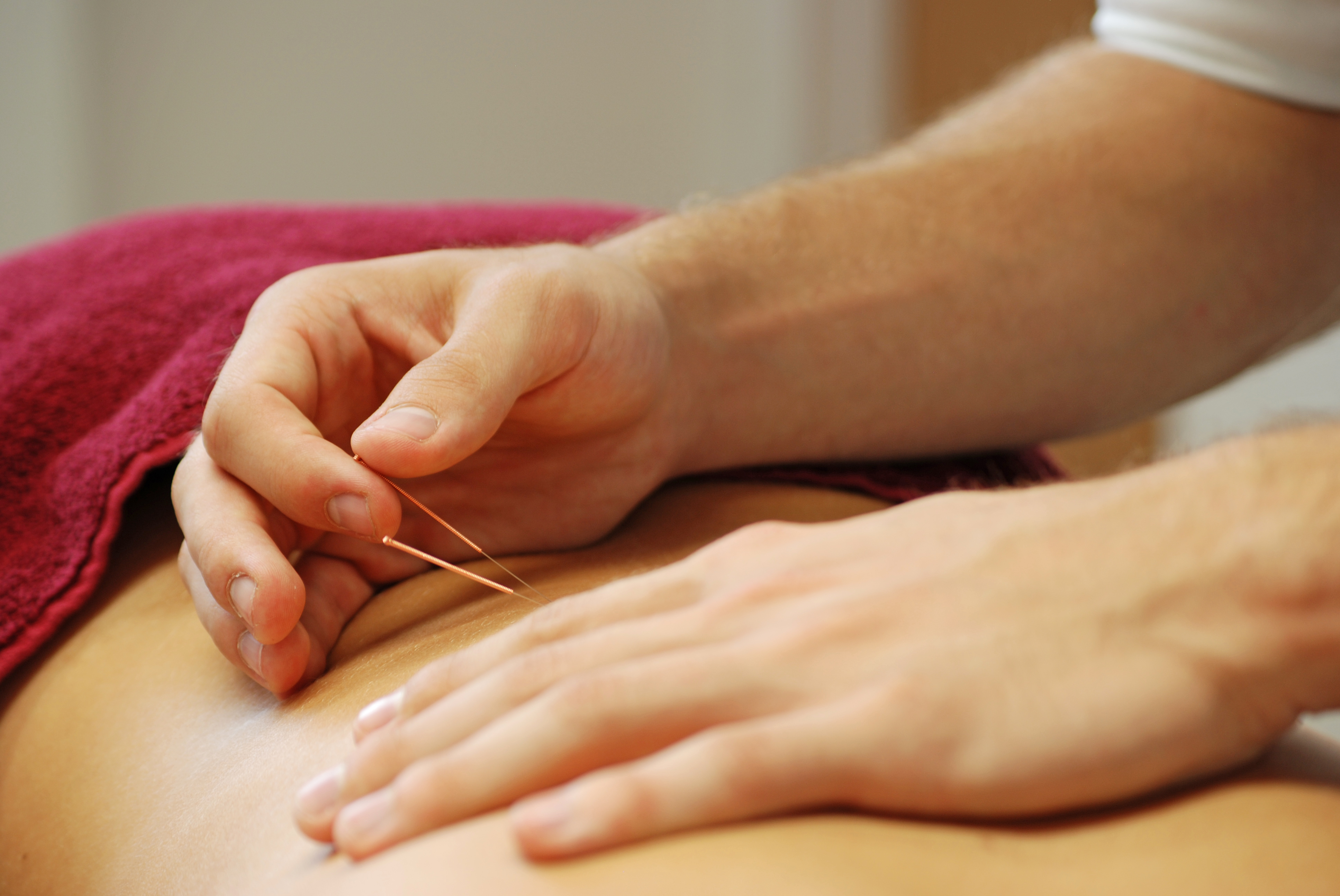 Acupuncture from £46