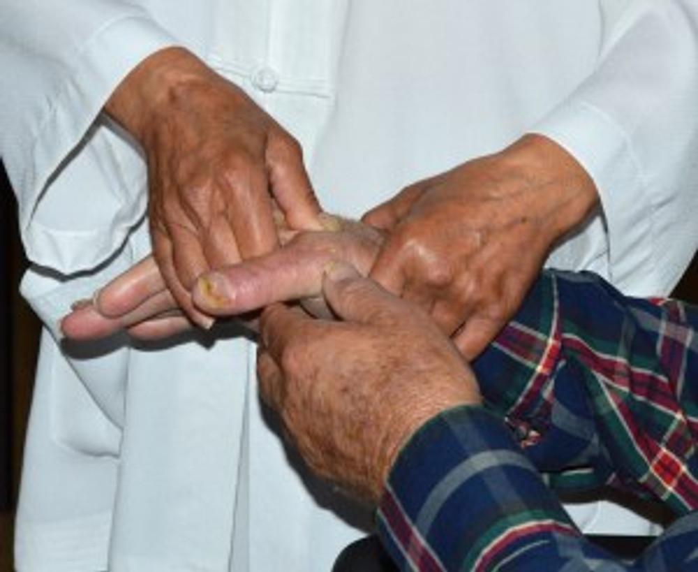Massaging older man's arthritic hands