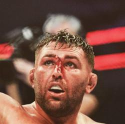 James bleeding face.jpg
