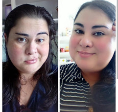 14 Facelift Sessions Bells Palsy.jpg