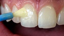Oakfield Dental - Fluoride Varnishes
