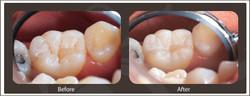 Oakfield Dental - Sealants