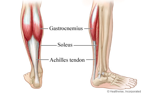 Runners Nemesis- The Calf Strain. What to Do to Get Back on your Feet