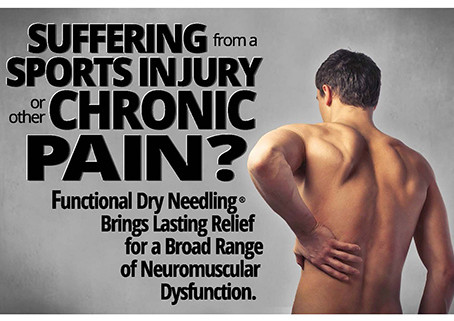Dry Needling - What is It and Is it For You?