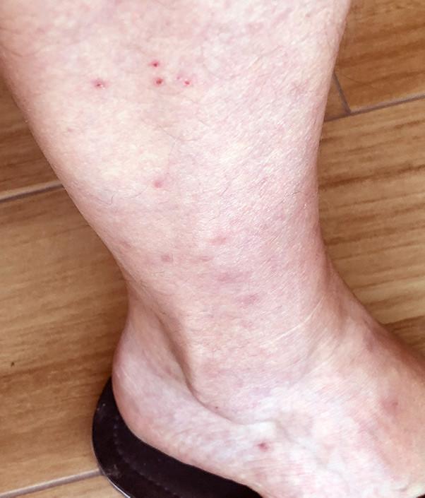 mosquito bitten leg