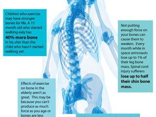Future of Aging: Exercising for Your Bones