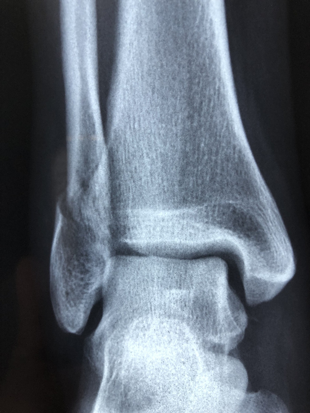 X-ray, Ankle