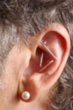 Acupuncture Needles in the ear.jpg