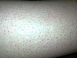 Skin Conditions and How To Prevent Them
