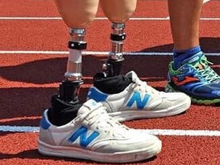 Prosthetic Limb Categories and Why They Should Be Part of Your Team Discussions.