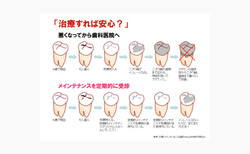 予防型歯科25策ツール