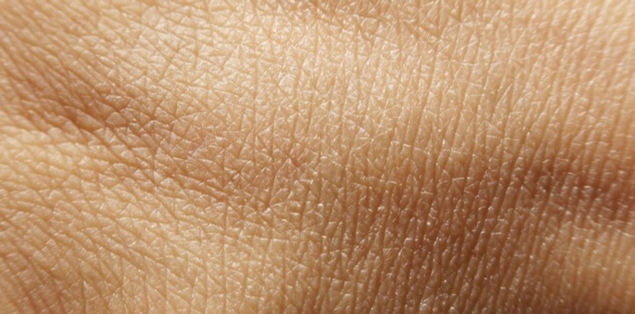 mallinckrodt-burns-treatment-stratagraft