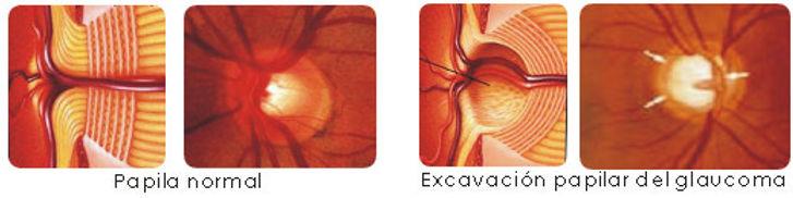 sintomas glaucoma