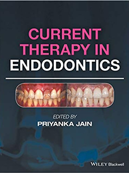 Current Therapy in Endodontics 1st Edition