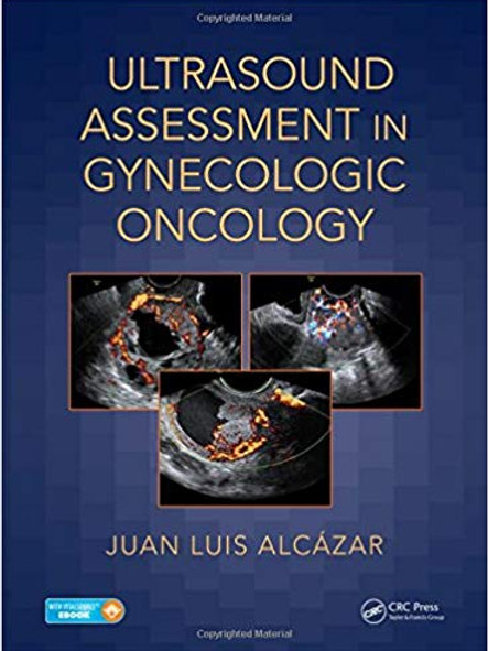 Ultrasound Assessment in Gynecologic Oncology 1st Edition