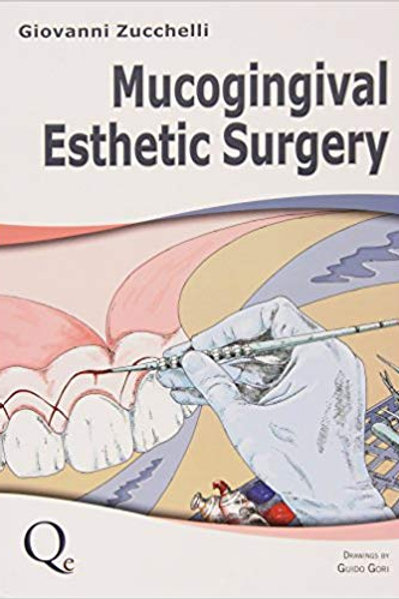 Mucogingival Esthetic Surgery 1st Edition