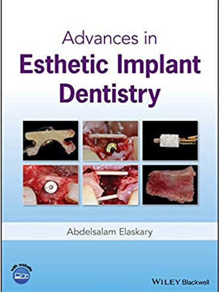 Advances in Esthetic Implant Dentistry 1st Edition