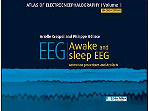 Atlas of electroencephalography - Awake and sleep EEG. Activation procedures and