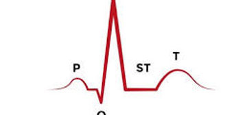 Clinical Challenges in Electrocardiography