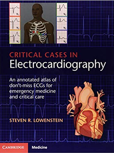 Critical Cases in Electrocardiography: An Annotated Atlas of Don't-Miss ECGs for