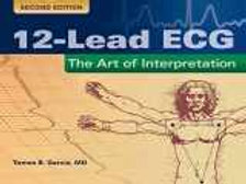 12-Lead ECG: The Art Of Interpretation (Garcia, Introduction to 12-Lead ECG) 12-
