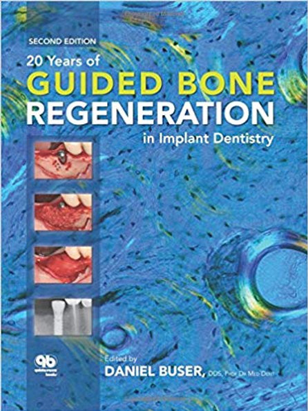 20 Years of Guided Bone Regeneration in Implant Denistry 2nd Edition