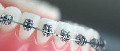 PEARSON + Prometric McQs in Orthodontics