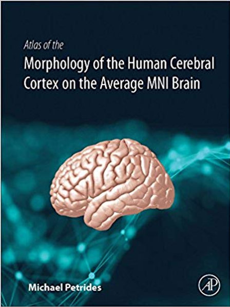 Atlas of the Morphology of the Human Cerebral Cortex on the Average MNI Brain 1s