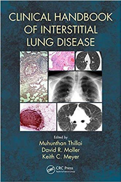 Clinical Handbook of Interstitial Lung Disease 1st Edition