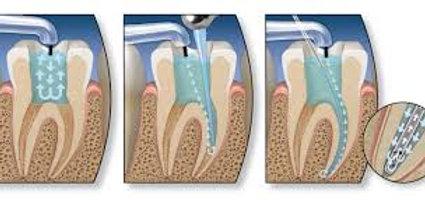PEARSON + Prometric McQs in Endodontics