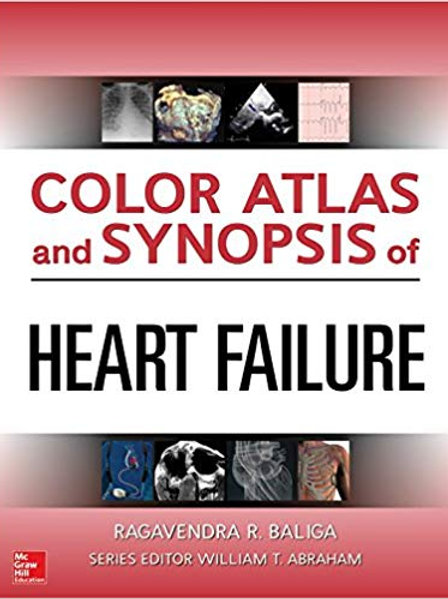 Color Atlas and Synopsis of Heart Failure 1st Edition