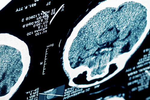 Stroke and Other Common Neurological Conditions