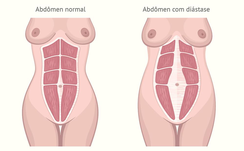 Diástase do músculo reto abdominal