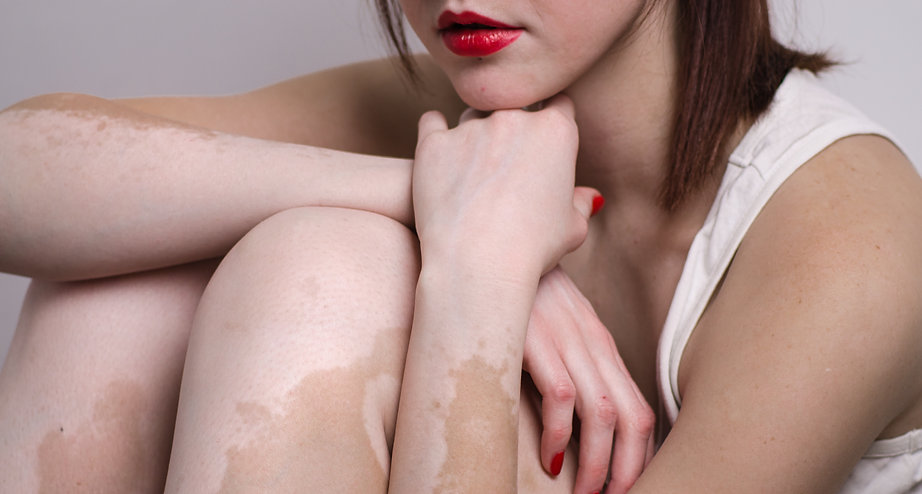 vitiligo affected young woman with red l