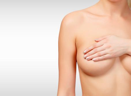 Reconstrução de mama devido a câncer de mama
