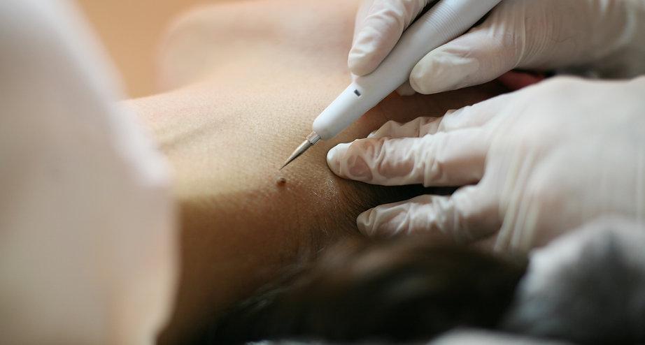 pele, cuidado, saude, cancer, verruga