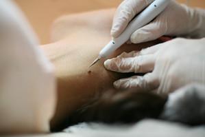 Cirurgia dermatológica