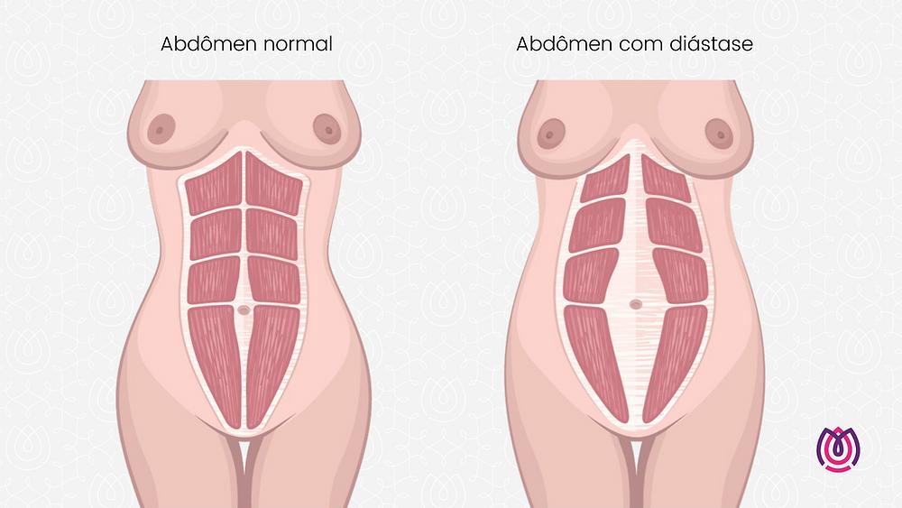 Clínica Mitera - Abdômen normal x abdômen com diástase