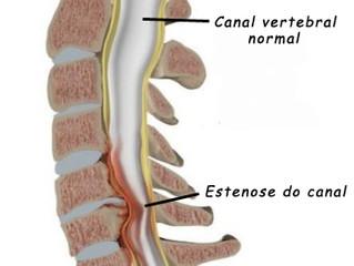 Fisioterapia para Estenose do Canal Vertebral Lombar é tão Eficiente Quanto a Cirurgia