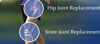 Fisioterapia Pré Artroplastia de Joelho e Quadril