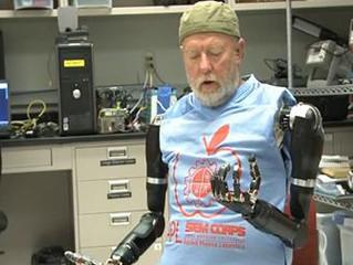 Amputado controla Prótese com o Cérebro!