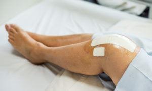knee-replacement-exercises-300x179.jpg