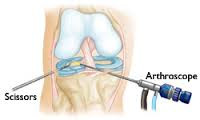 Cirurgia de Menisco x Cirurgia Placebo
