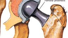 Protese de quadril-precaucoes e cuidados apos cirurgia