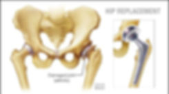 a-medical-illustration-of-a-hip-joint-re