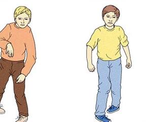 Novo Guideline sobre Espasticidade Promove Acesso Antecipado à Fisioterapia