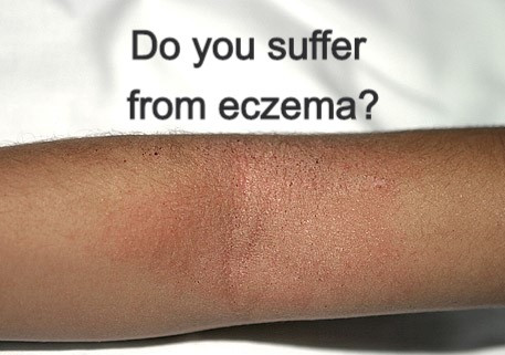 8 Tips to Manage Your Eczema.