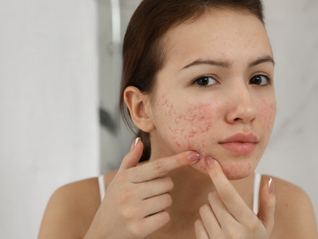 6 Tips on How to Clear Up Acne